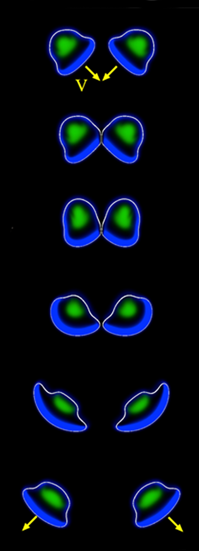 In a simulated collision, two cells deform as they bounce off each other. Many small such collisions can lead to a group of cells moving together in tandem, as modeled by researchers at Argonne National Laboratory.