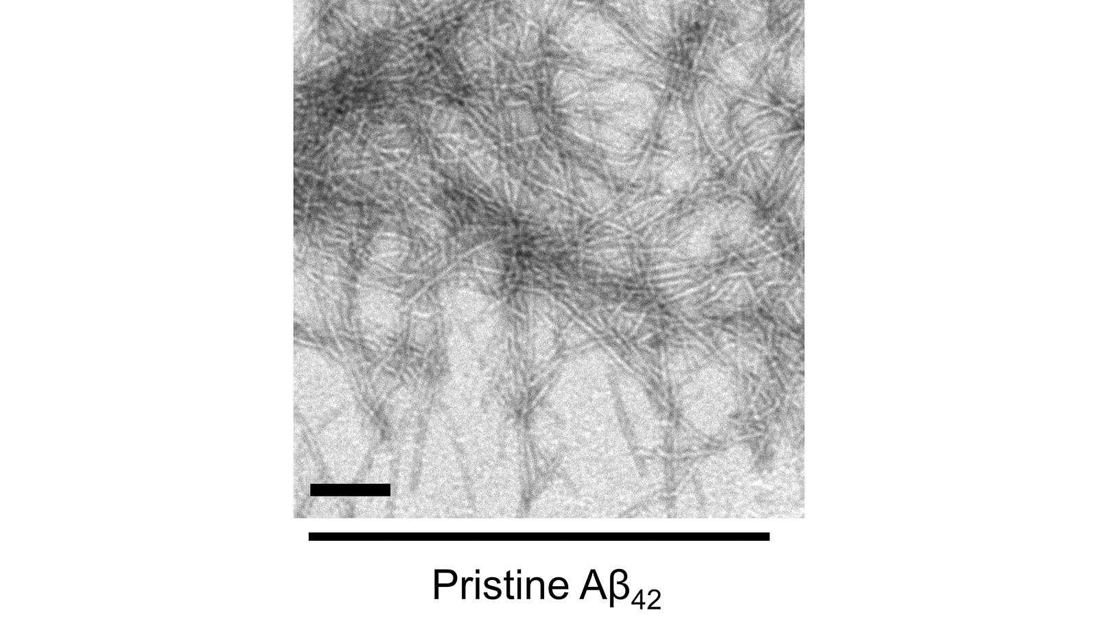 Transmission Electron Microscopy (TEM) images of Aβ peptide samples in the absence of the Aβ nanodevices (scale bar: 200 nm). The grains in the image are the peptides that, when left together, are prone to self-aggregation. (Image by Argonne's Center for Nanoscale Materials.)