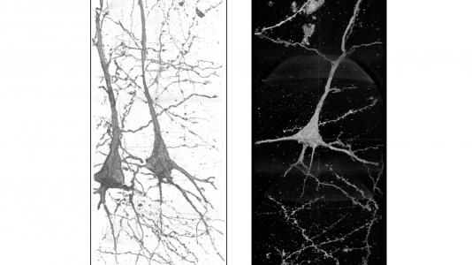 3D image of neurons in the brain of a schizophrenia patient