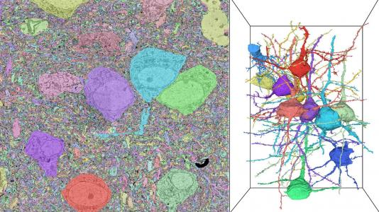 Images with multicolored splotches, splotches with veiney-looking lines. (Image by Nicola Ferrier, Tom Uram and Rafael Vescovi/Argonne National Laboratory; Hanyu Li and Bobby Kasthuri/University of Chicago.)